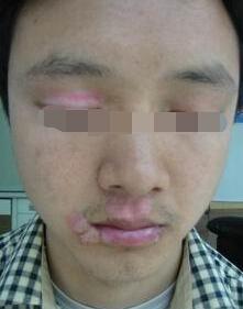 武汉青年人白癜风症状危害