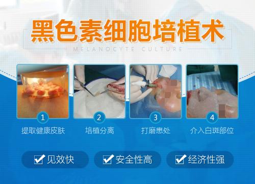 湖北省慈善总会白癜风手术治疗专项援助开启
