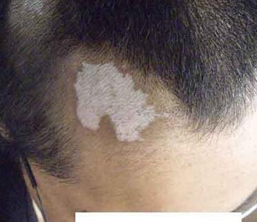武汉环亚白癜风医院讲解治疗白癜风需要注意什么