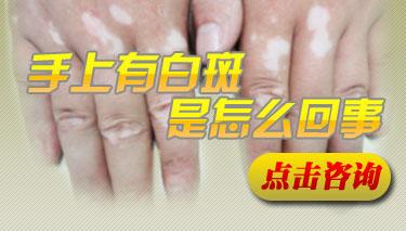 武汉治疗白斑病有效方法?导致白癜风发病的原因是什么