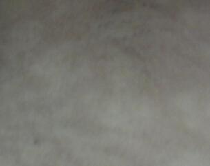 武汉有治疗白斑的吗?女性白癜风发病原因?